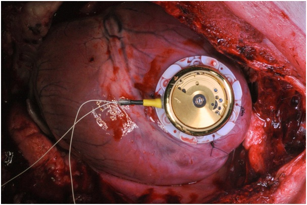 World's first cardiac pacemaker with automatic watch movement